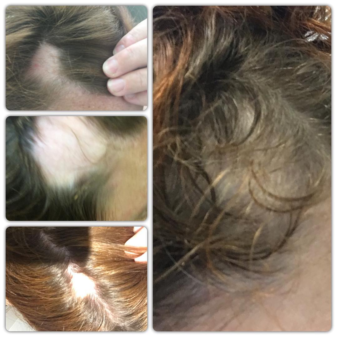 Alopecia and me - regrowing my hair
